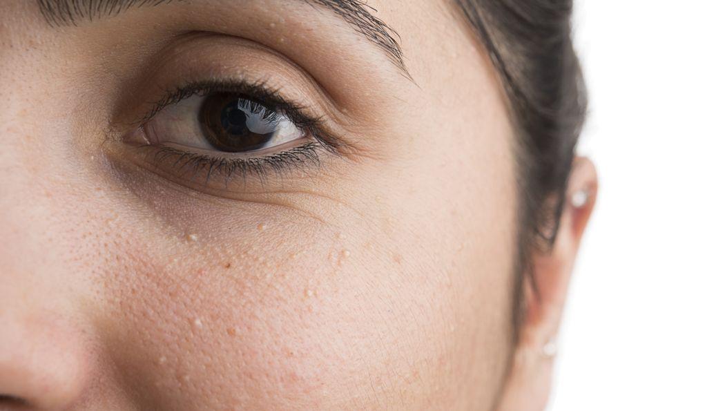 peau granuleuse zone t
