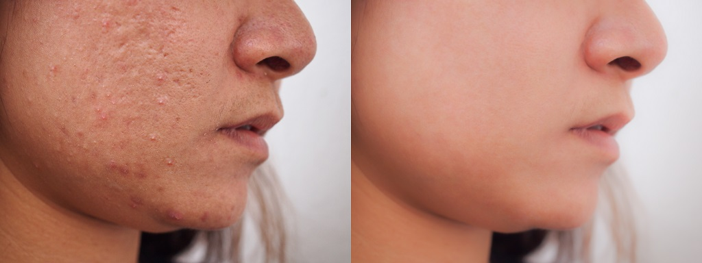 camoufler les cicatrices d'acné avec du maquillage
