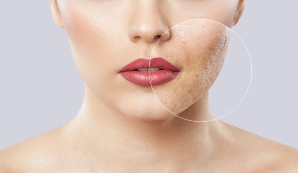 masquer les cicatrices d'acné