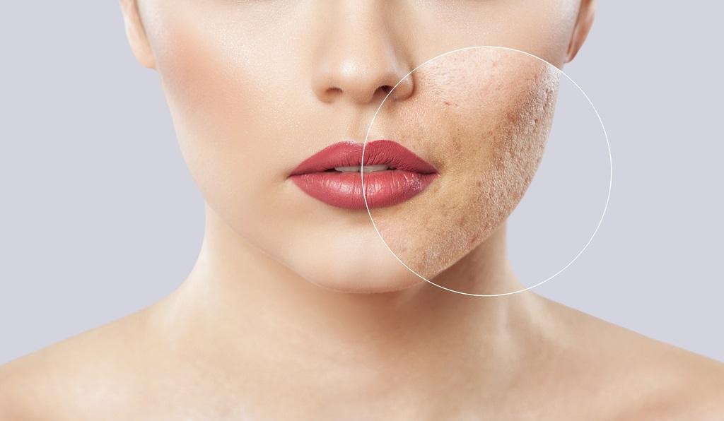 Comment masquer les cicatrices d'acné?