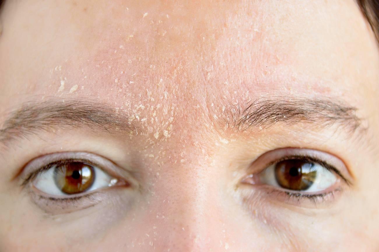 Peaux abîmées, sèches ou atopiques : comment en prendre soin ?