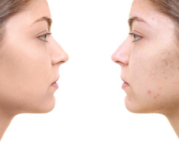 masques anti acné maison
