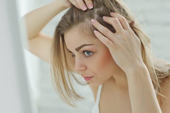 Chute de cheveux chez la femme : causes, traitements, solutions naturelles