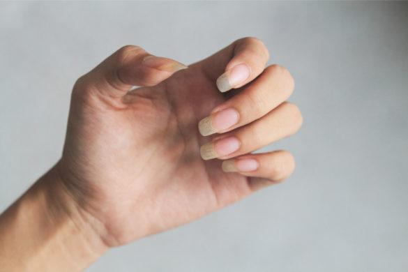 Ongle jaune causes et comment le rattraper