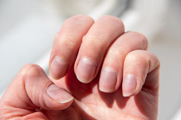 Ongle strié causes et comment réagir