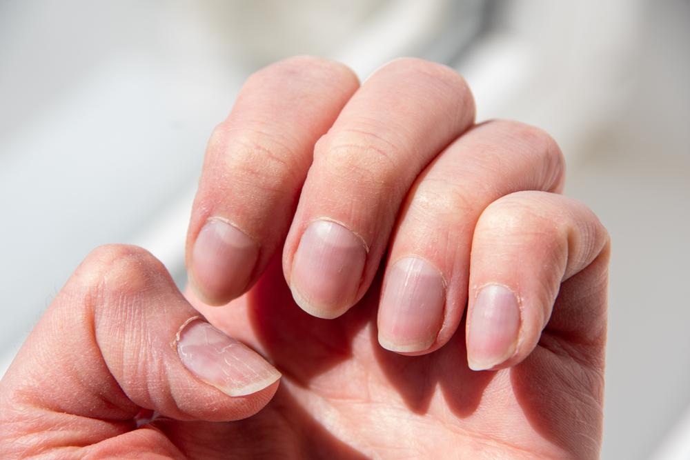 Ongle strié: causes et comment réagir?