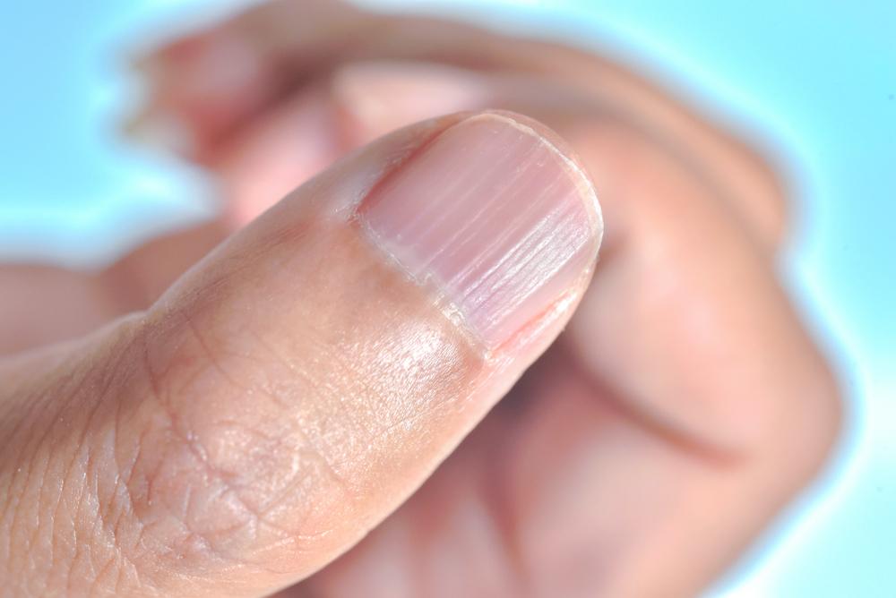 ongles striés