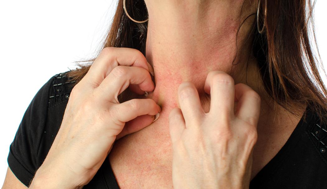 Bijoux fantaisie : le point sur les allergies